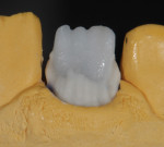 Figure 16 Opacious dentin buildup.