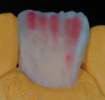 Figure 19 Opacious dentins used as modifiers.
