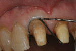 Figure 5 A non-impregnated #2-0 braided surgical suture was placed to expose 0.5 mm of tooth structure.