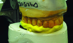 The mandibular based jig is now mounted to maxillary facebow mount with dental plaster.