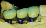 CAD/CAM abutments and PFM crowns seated on the Robocast.