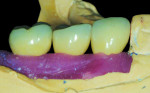 CAD/CAM abutments and PFM crowns seated on the Robocast with soft tissue.