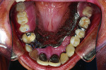 Figure 23 Upper partial denture seated.