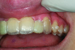 Figure 7 Delivering Invisalign modified temporary to develop the gingival contour.