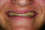 Figure 13 Smile view post-cementation of the conservative restorations to replace congenitally missing lateral incisors.