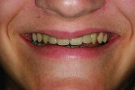Figure 14 Smile view at 2-year follow-up visit.