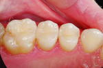Figure 2 Outstanding results can be achieved using DENTSPLY Caulk's stepwise approach, as with this completed Class II restoration on the disto-occlusal of tooth No. 4. Clinical photograph courtesy of Dr. Stehen Poss.