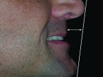 Figure 4 The patient exhibited a skeletal deep bite, Class I dental pattern tending to Class III skeletal tendency due to maxillary retrognathia.