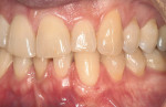 Figure 6a  Miller Class I recession from tooth No. 11 through tooth No. 13, and thin gingiva over teeth Nos. 8 through 10. Treatment goals included root coverage as well as gingival thickening to prevent future recession.
