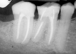 Figure 6  Twenty-nine month postendodontic treatment with Resilon demonstrating complete resolution of the apical lesion. (Photograph courtesy of Dr. Dan Shalkey.)