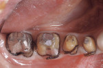 Figure 6  Crown preparations on teeth Nos. 29 through 31. (Dentistry by Dr. Robert Zena.)
