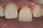 Figure 16 Gingival margin to incisal proportion was assessed at the try-in.