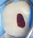 Figure 3 Inflamed hyperaemic pulp was revealed in initial access.