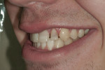 Figure 7 Left lateral view of the patient's teeth following removal of the braces.