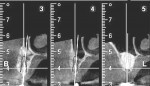 Figure 20 5-month postoperative CBCT cross-sectional views of site Nos. 12 through 14 revealed substantial vertical and horizontal bone augmentation as well as successful sinus floor elevation.