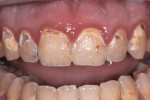 Figure 1 Patient with less than ideal hygiene needed both anterior and posterior restorations.