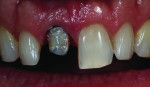 Figure 1 Assessment of tooth colors includes the stump shade and the incisal one-third lesion.