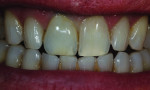Figure 35 Hydration of the teeth made a big difference to confirm a harmonious match.