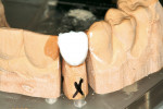 Figure 12  Overextension of incisal porcelain to compensate for shrinkage during firing.