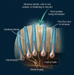 Figure 1  The hydrodynamic theory describes the aspiration of odontoblasts into the dentinal tubules as an immediate effect of physical stimuli to exposed open-ended tubules.