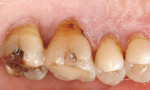 Figure 2b  Gingival recession with exposed root surfaces are susceptible to dentinal hypersensitivity. (B) Example of exposed lingual surfaces.