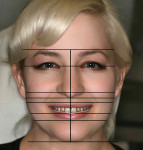 Figure 4 The facial evaluation.