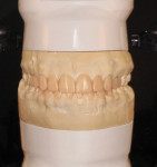 Figure 5 The diagnostic wax-up.