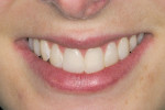 Figure 7  Smile preview.