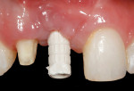 Figure 8. Following stage 2 implant uncovering and allowing the mucosal tissue to mature, a screw-retained temporary implant cylinder was seated to allow connection of an acrylic tooth.