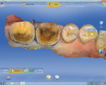 Figure 3 CEREC Omnicam scan of the prepped teeth No. 18 and No. 19.