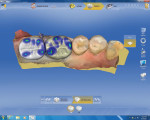 Figure 5 Proposed restorations on teeth No. 18 and No. 19 by the 4.0 software on the CEREC Omnicam.