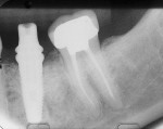 Figure 4  Radiographic evidence confirmed that the impression coping was seated properly.