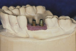 Figure 2 Stock implant abutments upon which will be fabricated CAD/CAM milled cementable copings or crowns.