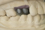Figure 4 CAD/CAM milled copings for cemented crowns ready for porcelain application seated upon CAD/CAM titanium abutments.