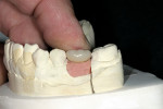 Figure 6  The PFM crown was fitted onto the prefabricated abutment.