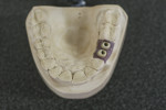 Figure 8 Zirconia CAD/CAM custom abutments that will accept ceramic cementable crowns.