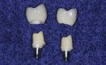 Figure 9 CAD/CAM milled zirconia abutments fabricated with metal connector insert, upon which zirconia CAD/CAM milled crowns have been fabricated.