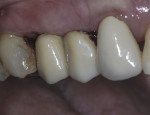 Figure 11 Buccal view of monolithic screw retained implant crowns.