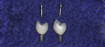 Figure 15 Screw retained porcelain fused to titanium single implant restorations.