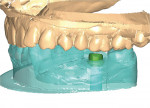 Figure 7  The abutment was designed on a computer monitor using CAD/CAM technology. Image courtesy of Astra Tech.