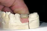 Figure 9  In the laboratory, the PFM crown was fitted to the custom abutment on the working model.