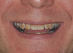 Figure 1 Initial presentation of the patient showing a low lip line smile.