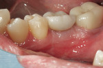 Figure 11  The PFM crown temporarily seated on the prefabricated abutment.