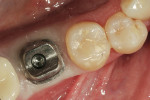Figure 12  The custom abutment inserted into the mouth.
