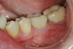 Figure 13  The PFM seated on custom abutment, 1 month after delivery.