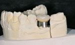 Figure 15  On the working model, the mushroom appearance of the crown and its prefabricated abutment can be seen.