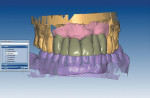 The design of the full anatomic bridge to be milled in PMMA as an esthetic verification try-in and insertion tool.