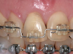 Figure 1b  Orthodontic extrusion in progress.