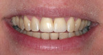 Figure 1j  Completed view of smile.