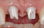 Figure 2j  Ceramic abutments in place. Note excellent soft tissue profile and papilla retention.